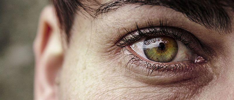 Patas de gallo en ojos verdes