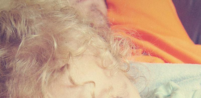 Síndrome del pelo impeinable
