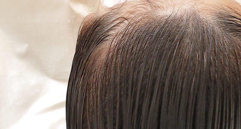 Cuidados del cuero cabelludo