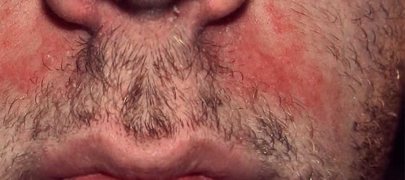 dermatitis seborreica en pelo de la barba