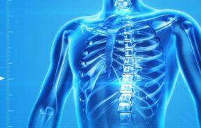 Osteoporosis: Prevención, Tratamientos, Síntomas y Pruebas a realizar