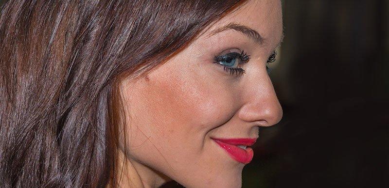 Peeling de fenol para arrugas de expresión
