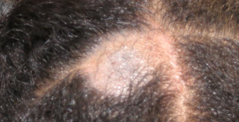 tina inflamatoria del cuero cabelludo tratamiento