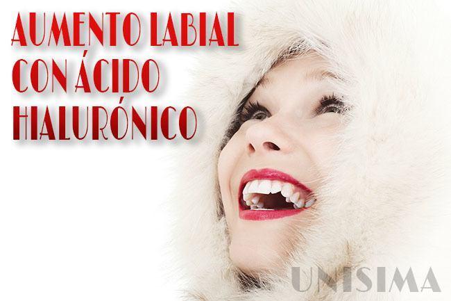 Aumento Labial con Ácido Hialurónico