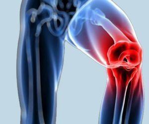 Tratamientos con Ácido Hialurónico en Rodillas con Artritis y Condromalacia