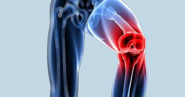 Dolores en rodilla solucionables con aceite de copaiba