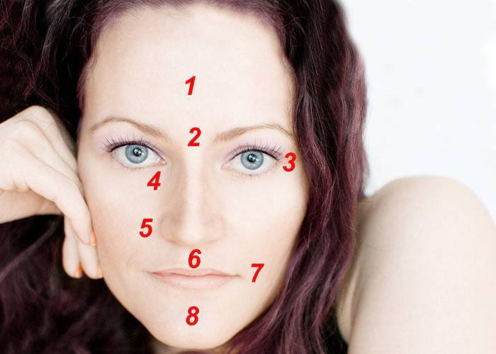 zonas rostro donde se inyecta ácido hialurónico en mujer