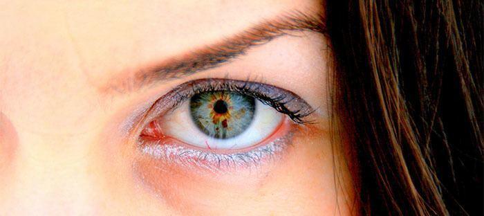 Ojeras Genéticas por hundimiento de la zona ósea