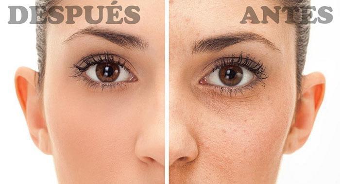 Acné antes y después de utilizar tratamientos naturales