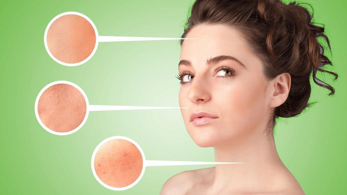 Aceite de argán contraindicado para pieles con acné