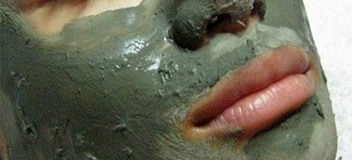 Arcilla verde para mascarilla contra el acné