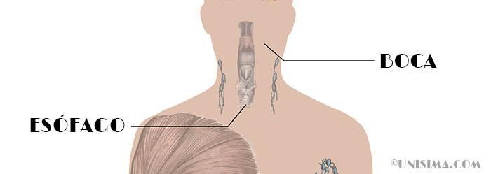 Que sintomas produce el reflujo gastrico