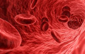 Anemia Microcítica: Riesgos, Causas, Tratamientos Y Diagnósticos
