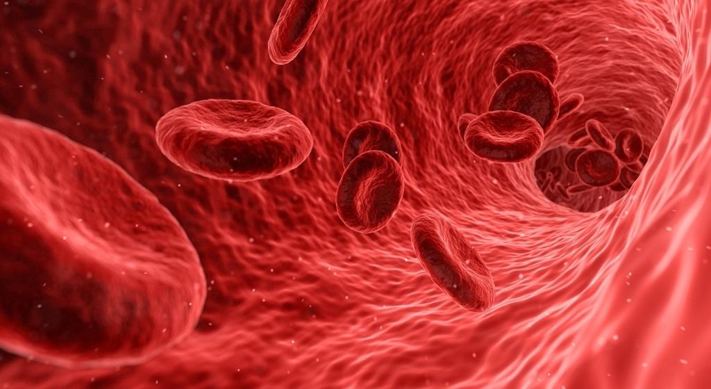 Anemia microcítica, glóbulos rojos pequeños.