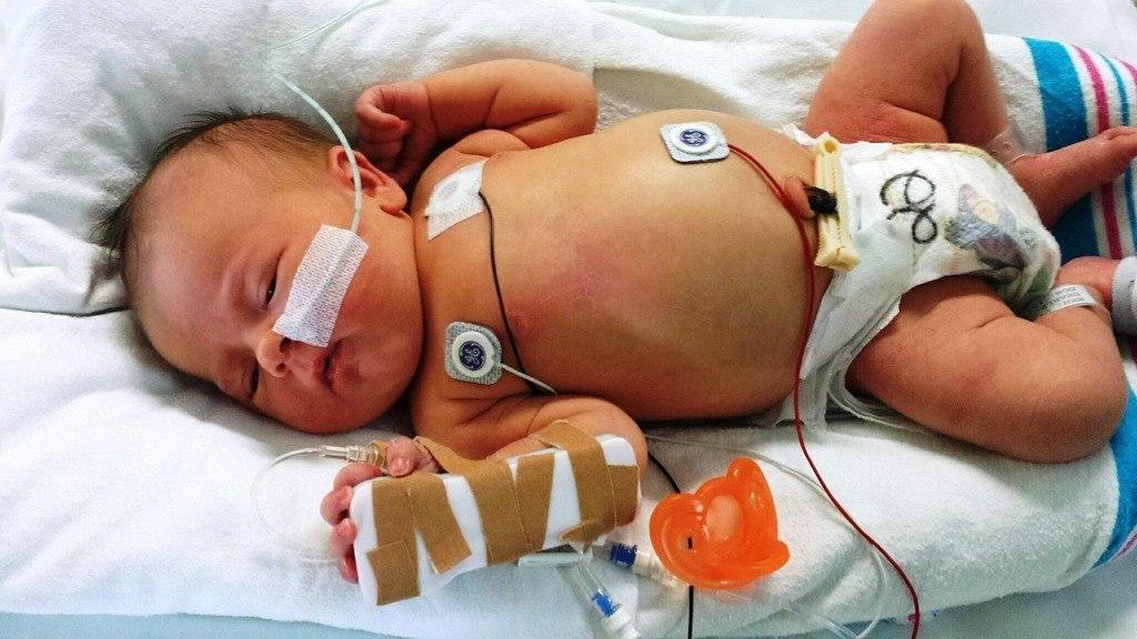 Bebé con apnea monitorizado