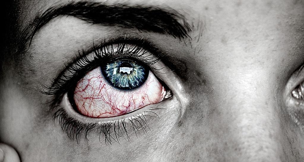 crema para ojos antiinflamatoria