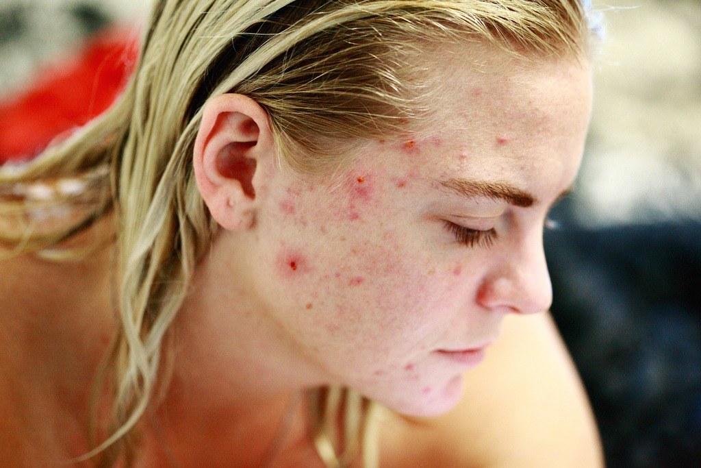 Levadura de Cerveza para el acné