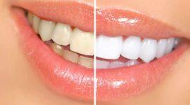 Blanqueamiento dental: el secreto para lucir unos dientes blancos