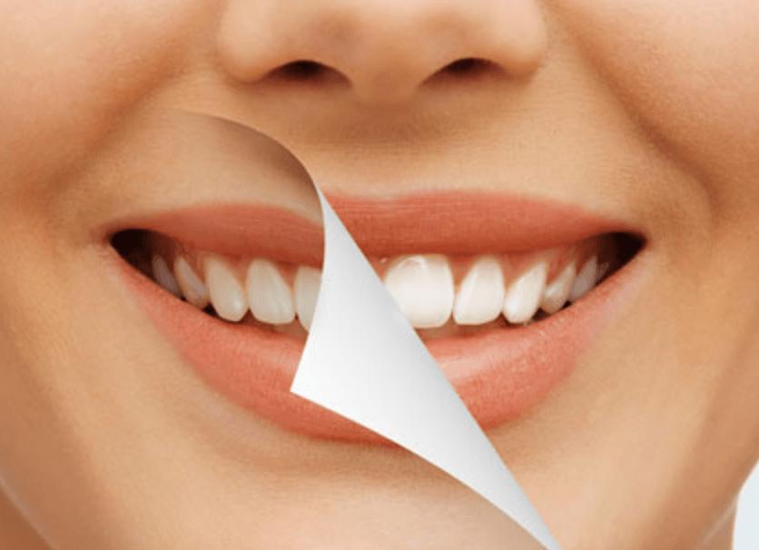 que es blanqueamiento dental