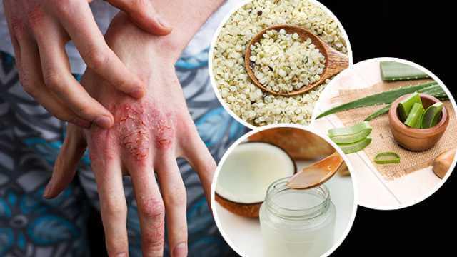 remedios piel atopica