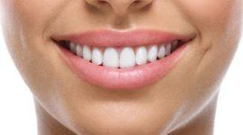 Cómo lucir una sonrisa perfecta