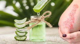 ¿Funciona el aloe vera para tratar el eczema