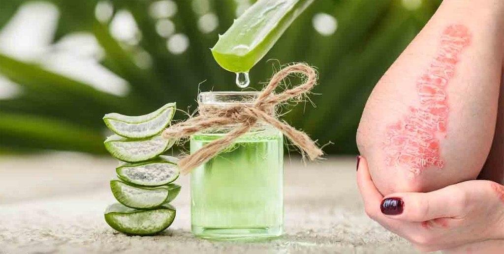 aloe vera para eczema