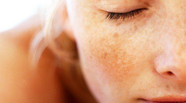 hiperpigmentacion piel