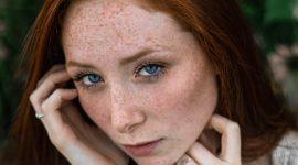 Formas eficaces de eliminar las manchas de la piel
